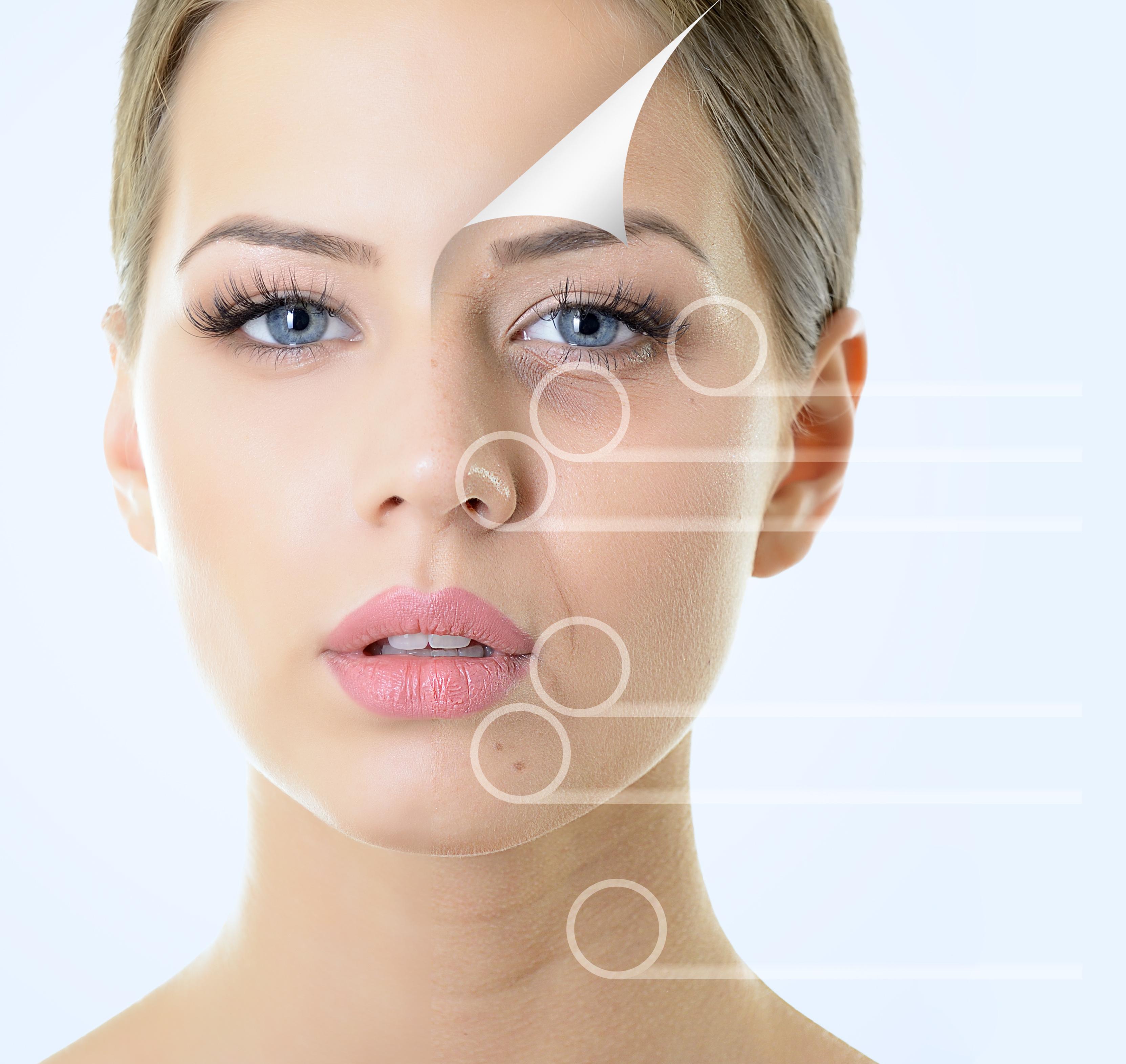pourquoi la mesothérapie visage