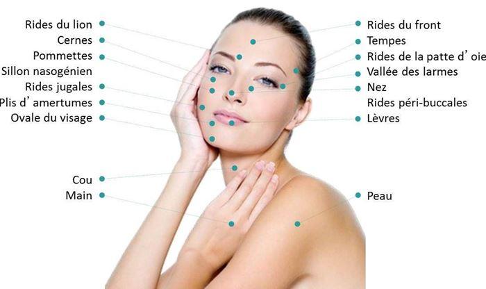 Mesotherapie visage bienfait